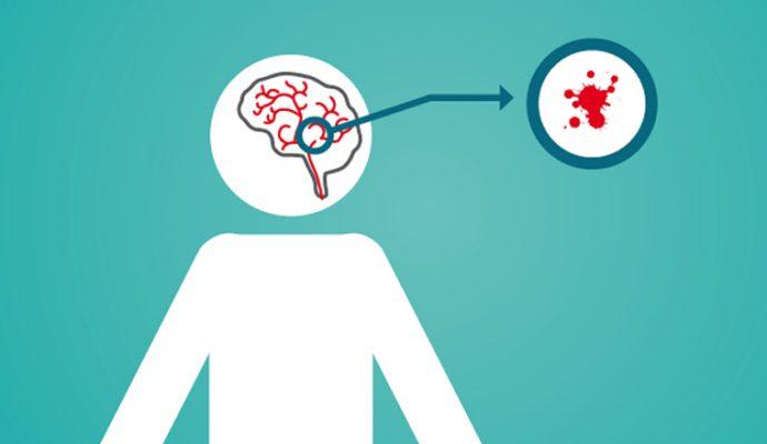 Une matinée d'informations ce samedi sur les accidents vasculaires cérébraux