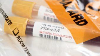 Coronavirus : plus de 100 décès dans la région